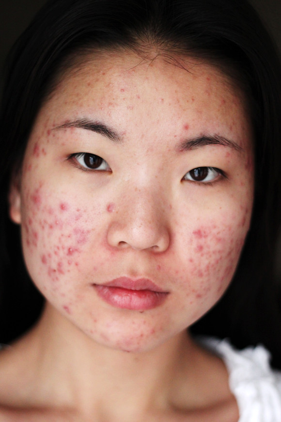 Girl with Acne