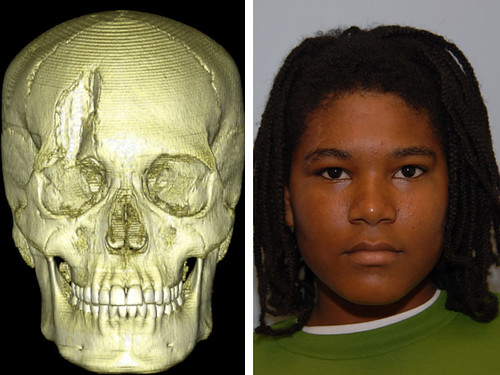 6 yo who suffered a crush to his skull when a porch collapsed on his head. Post op photo is 2 months after emergency repair at St. Louis Children's Hospital. Pre-op not shown due to graphic nature of images.  For more information on plastic reconstructive surgery at St. Louis Children's Hospital, visit www.stlouischildrens.org/our-services/plastic-surgery.
