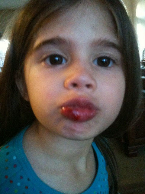 Adison's second busted lip of the week