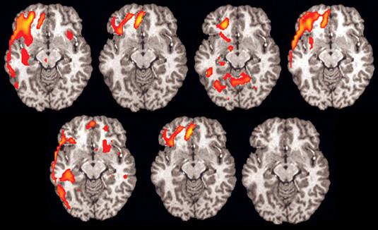 Brain_fMRI_Psychiatry_01_50%