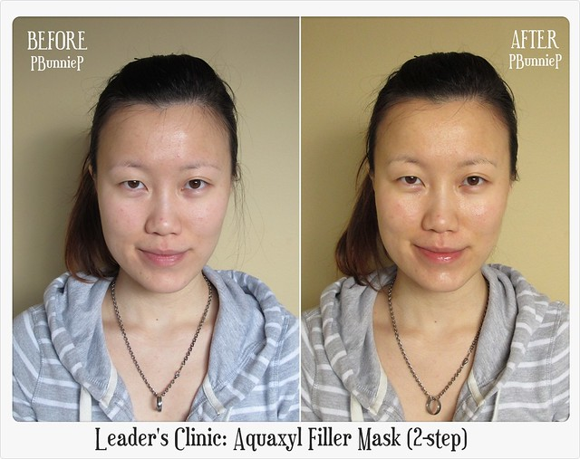 Leader's Clinic Aquaxyl Filler Mask (2-step)-3