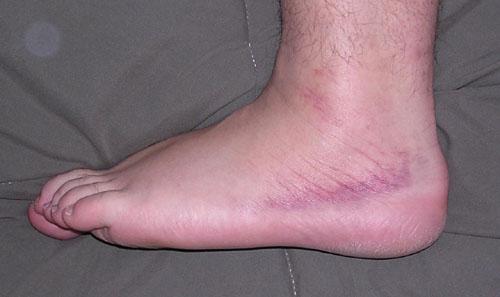 [bruised ankle]