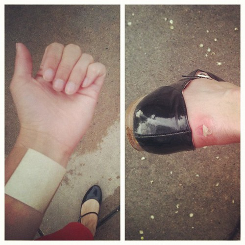 a career in photography can be dangerous from time to time. cuts & blisters.