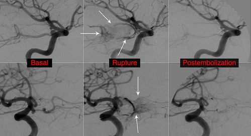 Aneurysm rupture during coiling