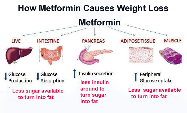 Does Metformin Cause Weight Loss