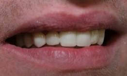 Laurel DE - Laurel Dental - Family Dentist After 2