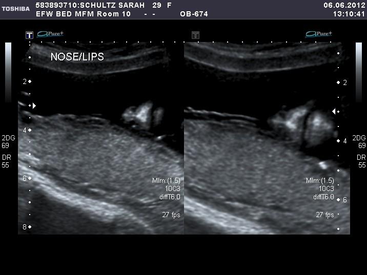 18 Week Anatomy Scan