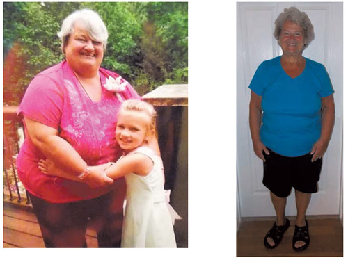 (WEIGHT) LOSER OF THE MONTH: MARCIA CLENDENING