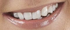 Hampaiden valkaiseminen
