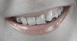 Adobe Photoshop - Hampaiden valkaisu