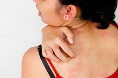 Весняні загострення шкірниххвороб