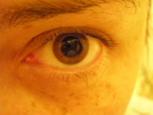Dilated Eye