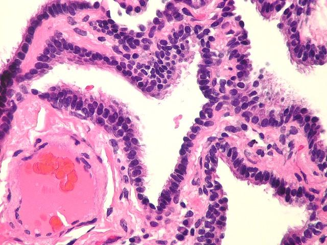 Header of bronchiolar