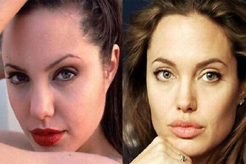 Angelina-Jolie-rinoplastia