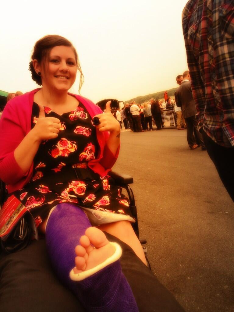 Bsxxjdciaaaeii2 Large Broken Leg Ankle Foot Cast