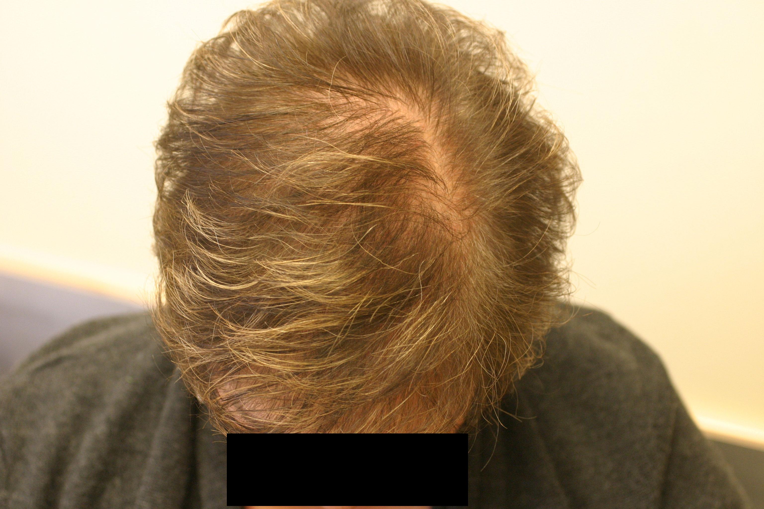 Aldactone Hair Loss