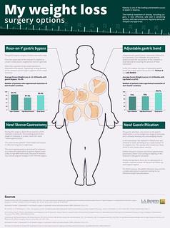 תרשים האפשרויות לניתוחים בריאטריים