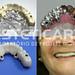 laboratorio_de_protese_dentaria_cad_cam-693