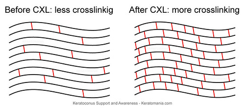 Effect of corneal collagen crosslinking for keratoconus