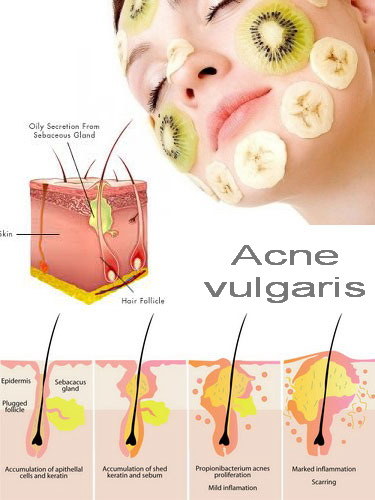 Acne vulgaris by Adams999
