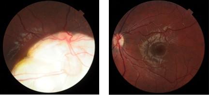 Coloboma corioretiniano: el fondo de ojo corresponde en ambas fotografías a un mismo niño. La imagen de la derecha es el fondo de ojo normal donde se observa el disco blanco-rosado normal de donde salen las arterias y las venas que corresponde a la papila y el centro de la imagen corresponde a la mácula , el área de mayor visión. La imagen de la derecha se observa la zona blanca que corresponde al coloboma corioretiniano que engloba a la papila (de donde salen los vasos sanguíneos) y a la mácula por lo que ese ojo tiene muy mala visión y ha desarrollado un estrabismo.