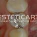 laboratorio_de_protese_dentaria_cad_cam-680