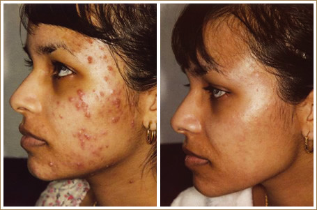 Microdermabrasion before and after acne scars photo 1
