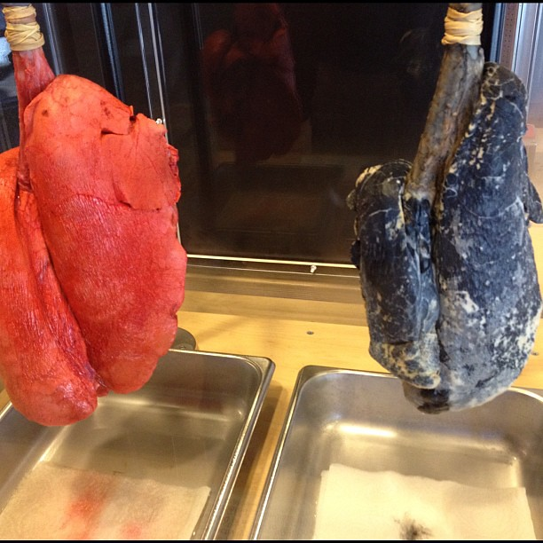 Testing the air capacity of real lungs. Didn't think that ...