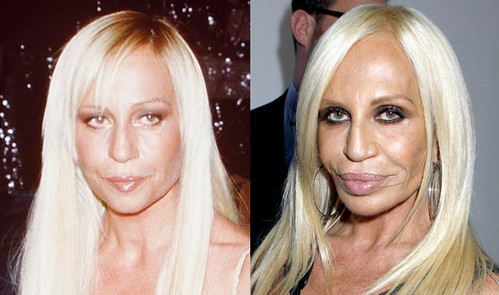 Donatella-Versace-cirugia-estetica