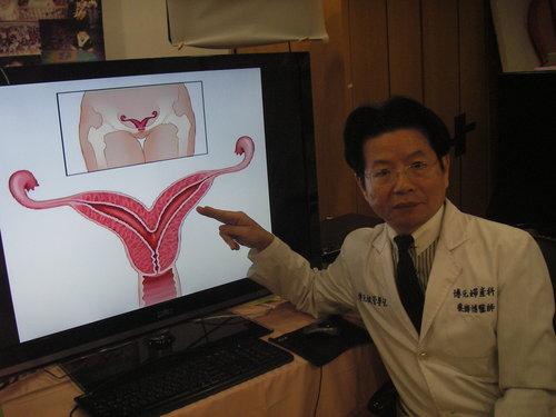 8月墮胎潮中意外發現非常罕見的雙角子宮2