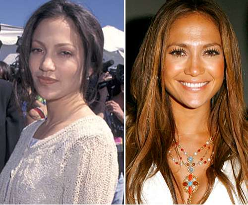 Jennifer-Lopez-antes-después-operación-nariz