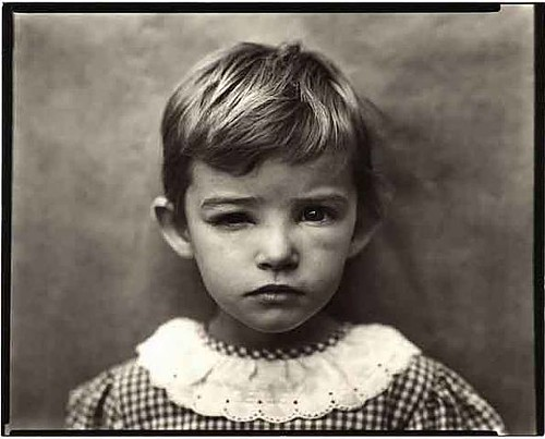 sally mann damaged child