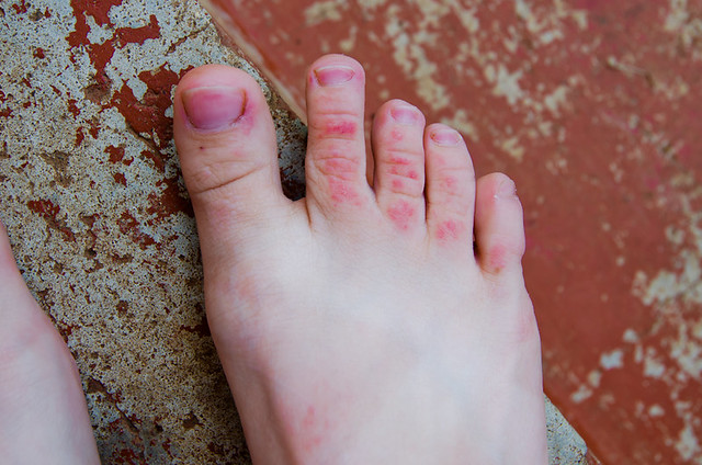Itchy, red, swollen foot.feet - Dermatology - MedHelp