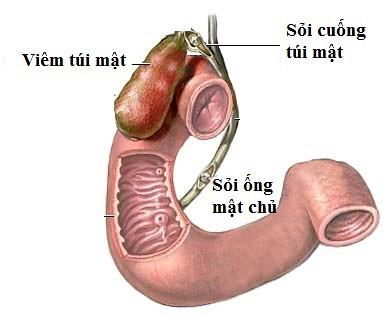 thuốc lợi tiểu làm tăng nguy cơ bệnh sỏi mật