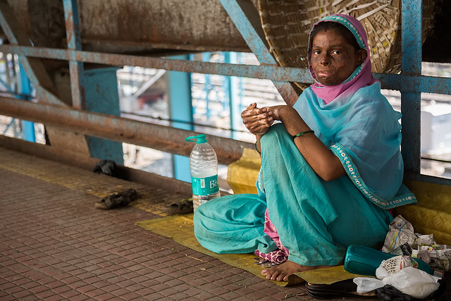 An acid victim at the train station in Mumbai, India.
