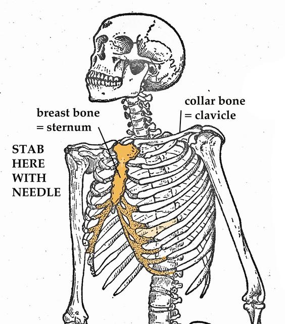 uma skeleton