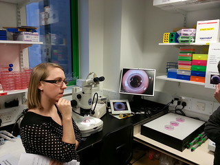 Woman next to a microscope and the cornea under it shown on a screen beside it.