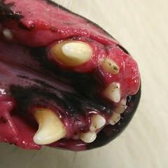 Acanthamatous ameloblastoma