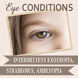 Intermittent Exotropia