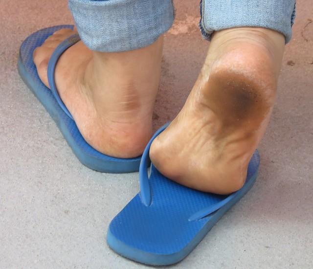 image Mature wrinkled feet in flip flops