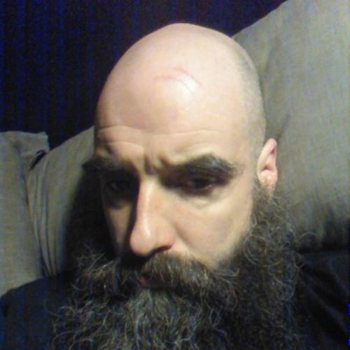 A Sore Head