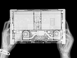 Tablet X-Ray