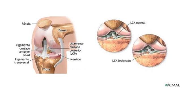 Artroscopia Total: Hombro, Rodilla y tobillo: Rotura del ligamento ...