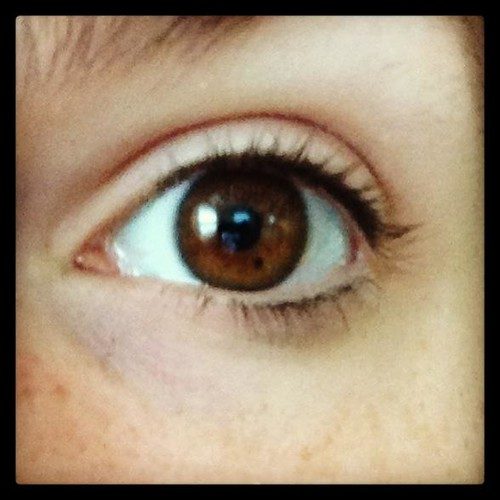 eyefreckle
