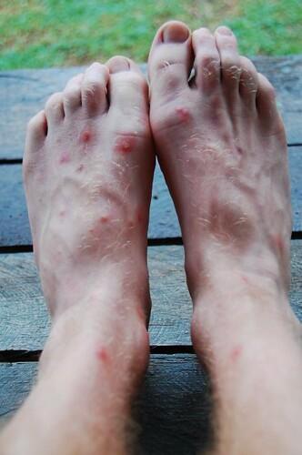 Severe mosquito bites on feet