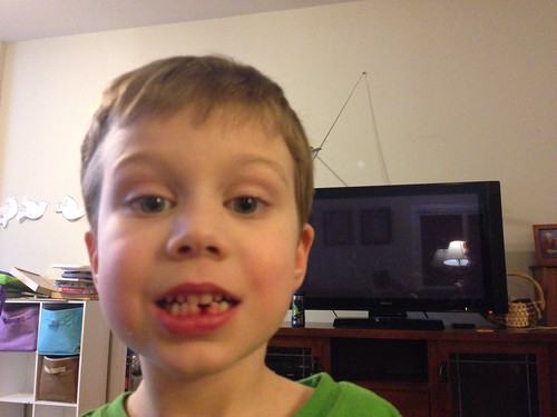 1st tooth in, 1st tooth out by Alverdi Photos