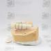 Puente implantes 2