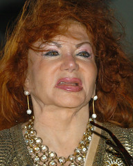 Jackie Stallone After Surgery