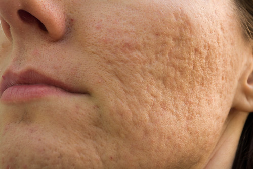 Dr. Schlessinger discusses pitted acne scars