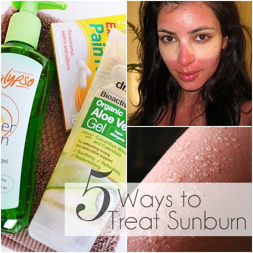 how_to_treat_sunburn